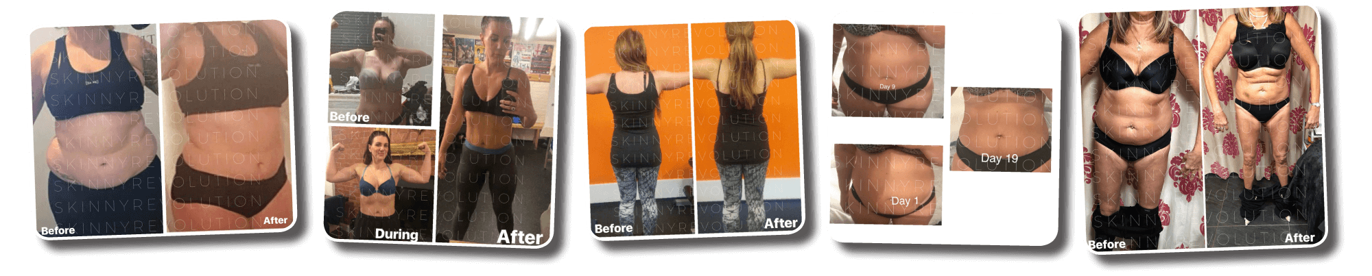 Skinny Revolution Weight Loss Testimonials